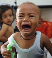 Foto anak kekurangan gizi